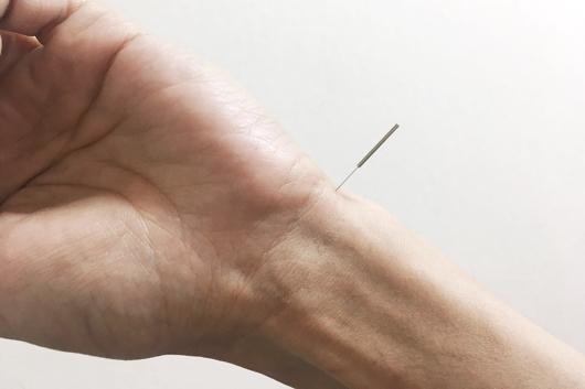 カモガヤ花粉症対策 鍼灸と刺絡で予防