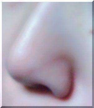 アルケミー洗顔料を使い続けた結果の小鼻(左)