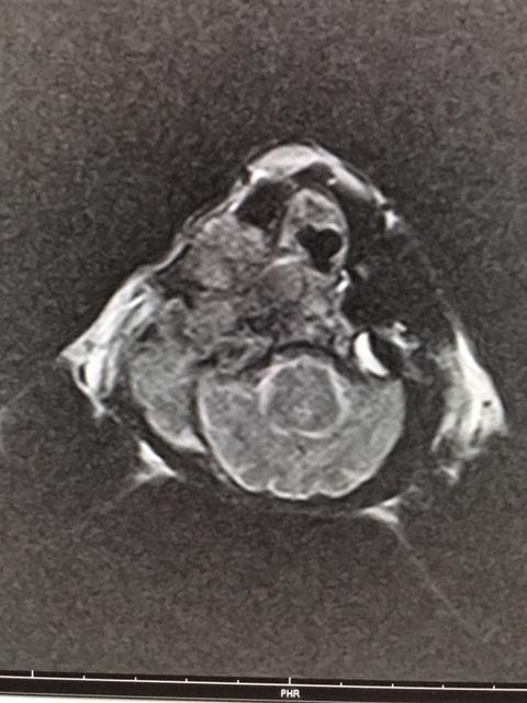 くみ MRI1
