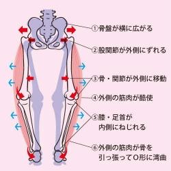 O脚・骨盤などの歪み