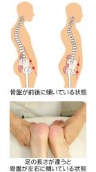 O脚・骨盤などの歪み2