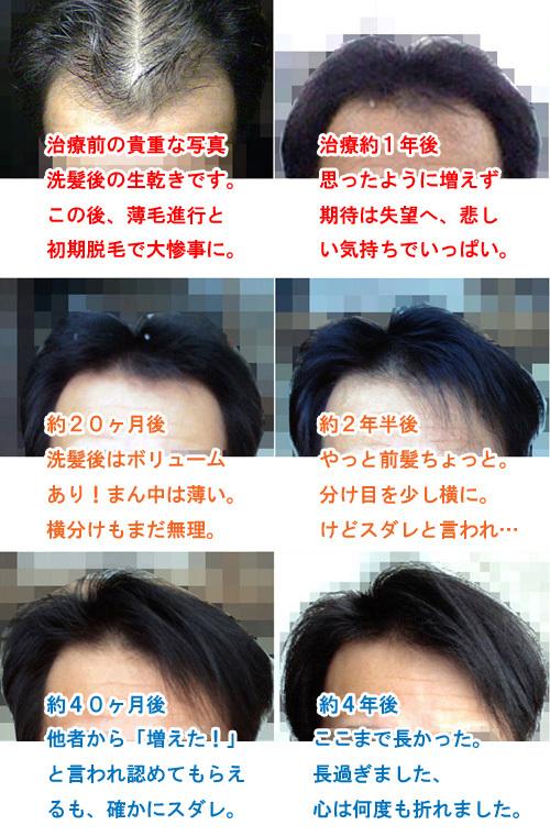 前髪の変化の写真画像