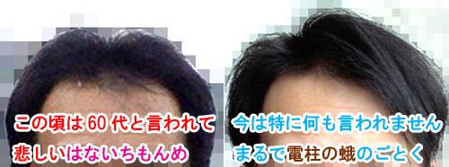 前髪が無いと老ける
