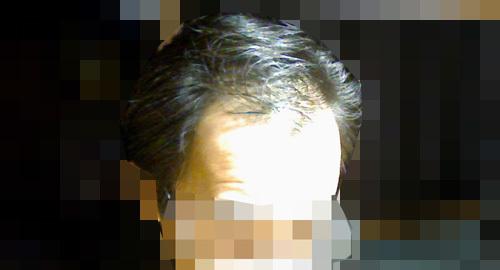 髪が抜けた画像写真