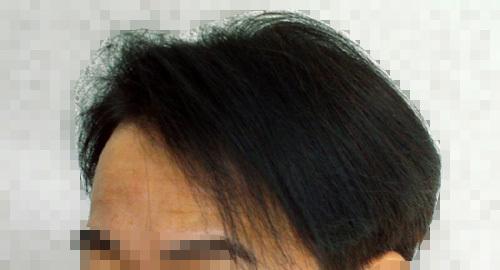 ハゲの髪型