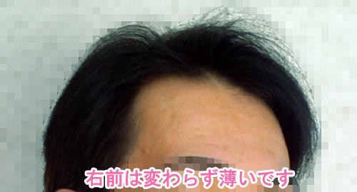 ハゲ分け目薄毛