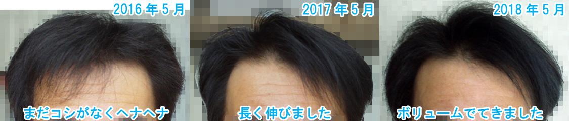 髪が生える画像写真