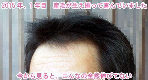 ミノキシジルで髪が生えてきた