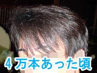 ハゲになる部分の髪の本数