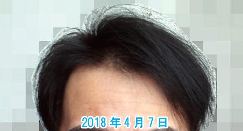 薄毛の現在写真