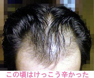 生え際M字前髪