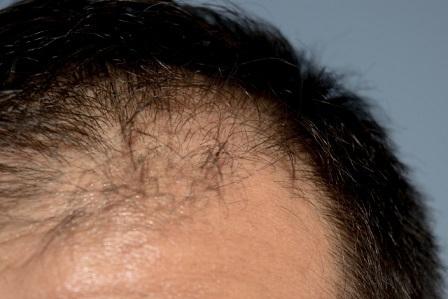 頭皮環境の乱れ