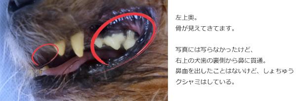 パコの歯20170714