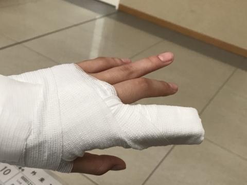 左手人差し指の脱臼でした。((((;゚Д゚))))ガクガクブルブル