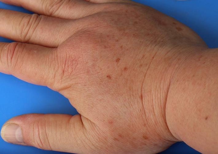 あしなが蜂に刺された右手 30 7 12