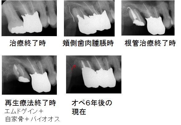 右上最後臼歯の経過