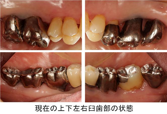 現在の上下左右臼歯部の状態