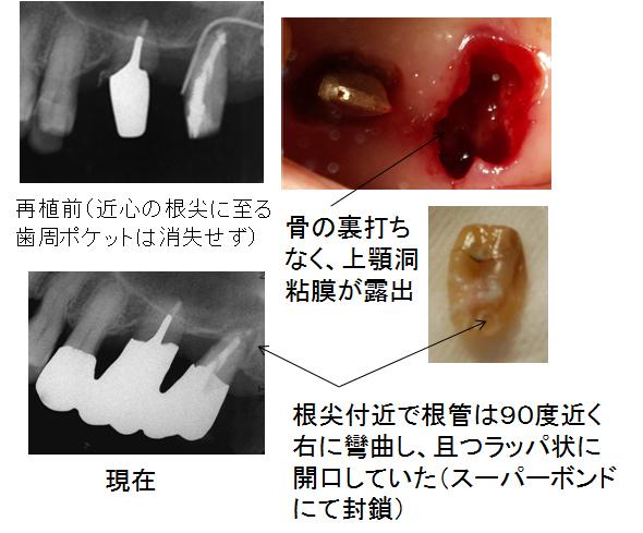 左上臼歯の治療経過