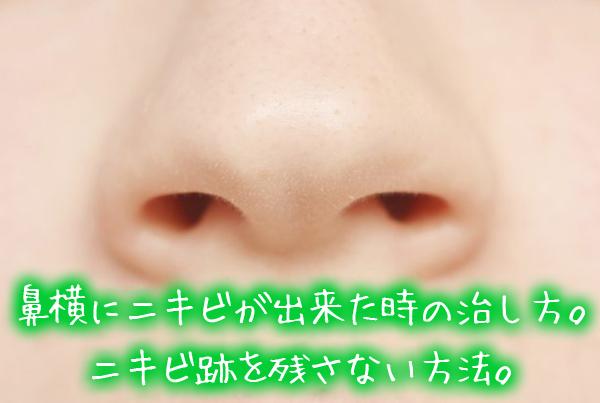 鼻横にニキビが出来た時の治し方。ニキビ跡を残さない方法。