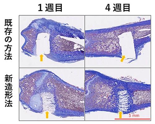 骨の欠損を印刷した骨で補う