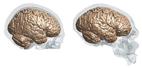 ヴォイニッチの科学書 第705回 脳の大きさが環境適応力を決めた
