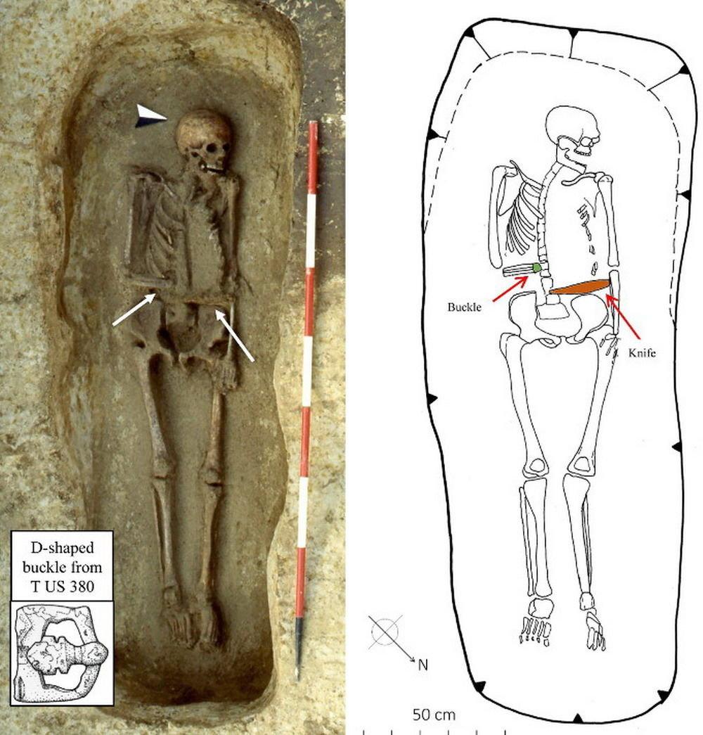 【イタリア】「サイボーグ化」された中世時代と思われる男の骸骨を発見…右腕にナイフの付いた義手