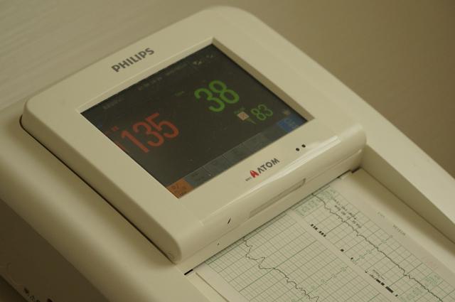 お腹の張りと赤ん坊の心拍を測る機械