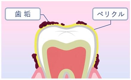 1位11冠達成?ツルツル、輝きのある白い歯!歯周病、口臭対策にもいい【美歯口(びはく)30DAYS ホワイトニングキット】効果・口コミ。