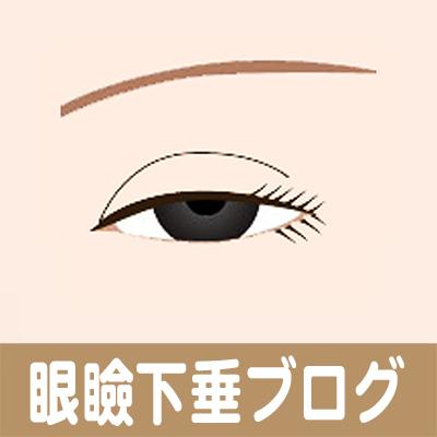 眼瞼下垂,手術,治療,横浜市