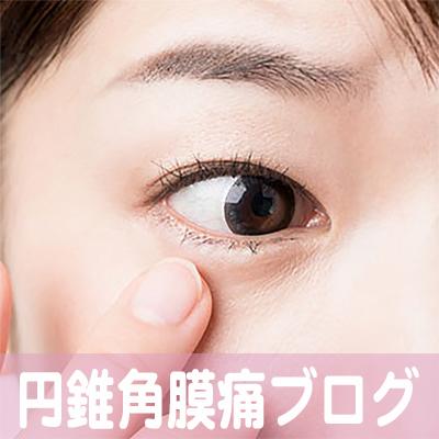 円錐角膜,コンタクト痛,治療,病院,名古屋市