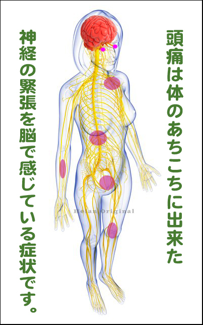 片頭痛,治し方,治療,大阪,京都,神戸