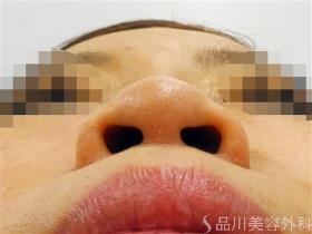 5_20180426132552b44.jpg
