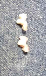 ゼロス 歯