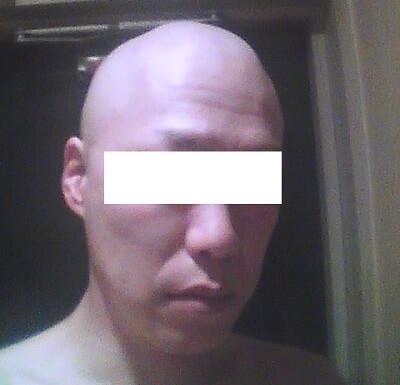 抗がん剤の副作用、脱毛の起こりかた、エイジングケア